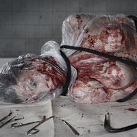 Autopsy of Imogen - 04