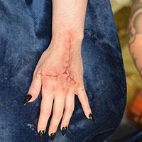 BTS Bride of Frankenstein 03 - Hand Scars