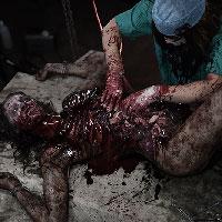 Zombie Autopsy 13 - Exploratory Surgery
